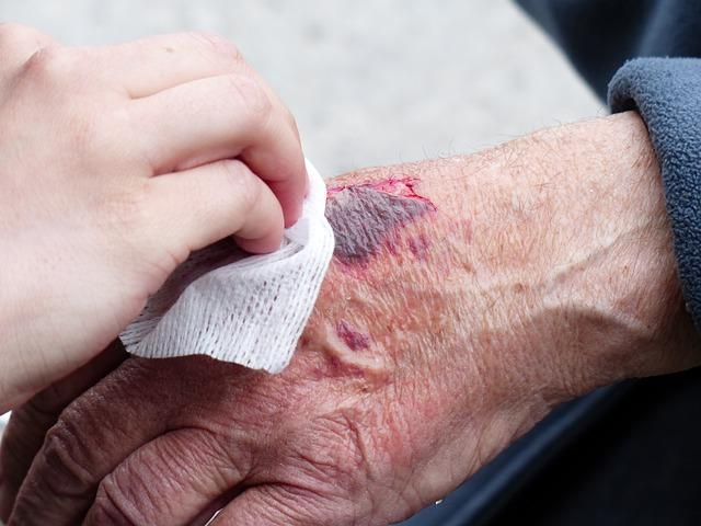 Dijabetične rane i melem za rane