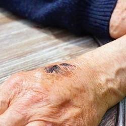 Dijabetes i rane na telu